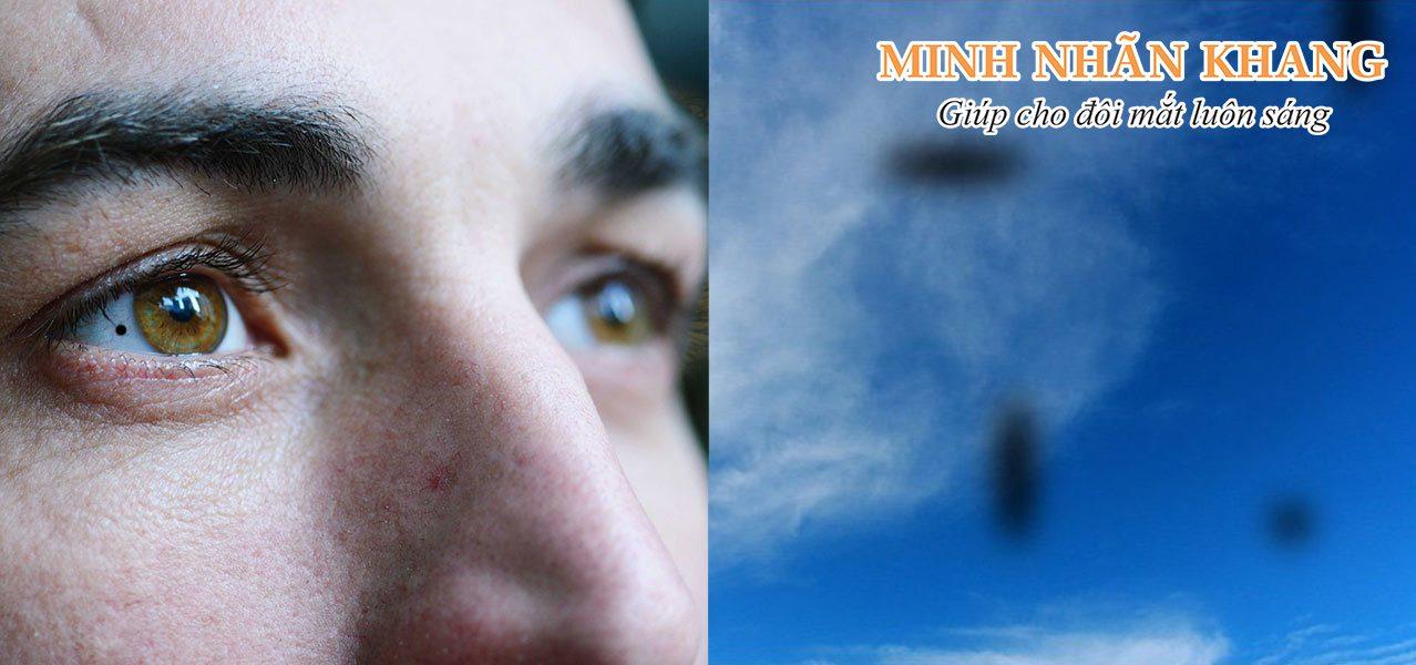 Mắt có đốm đen có thể xảy ra do nhiều bệnh nhãn khoa nguy hiểm